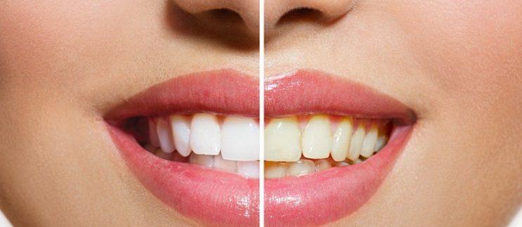 causas de los dientes amarillos, dientes amarillos en boadilla, decoloración dental en boadilla, limpieza dental en boadilla, clínica dental en boadilla, odontólogo en boadilla, dentista en boadilla, odontología en boadilla, higiene oral en boadilla