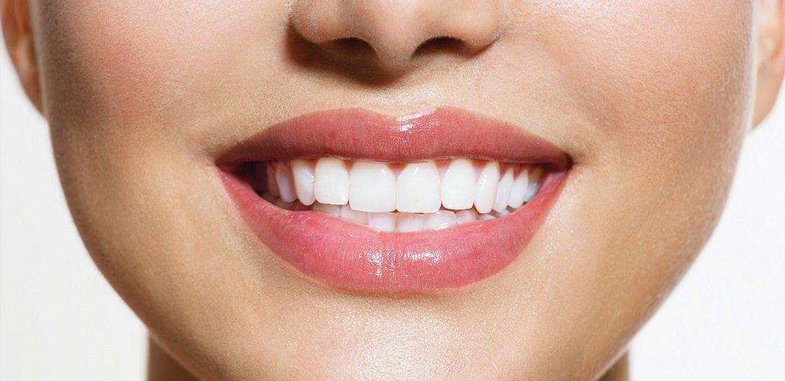 consejos sobre blanqueamiento dental, blanquear los dientes en boadilla, blanqueamiento dental en boadilla, dentista en boadilla, clínica dental en boadilla, sonrisa blanca en boadilla, dientes blancos en boadilla