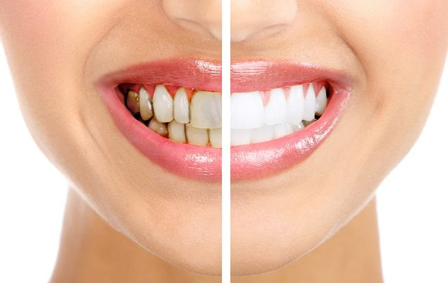 decoloración de los dientes, dientes amarillos, dientes oscuros, cambio de color de los dientes