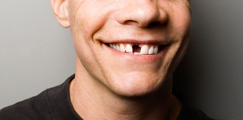 dientes ausentes, pérdida de piezas dentales en majadahonda, dientes ausentes en majadahonda, dentista majadahonda, odontólogo majadahonda, clínica dental majadahonda, sonrisa majadahonda, implante dental majadahonda, autoestima majadahonda, corona dental majadahonda, estética dental majadahonda