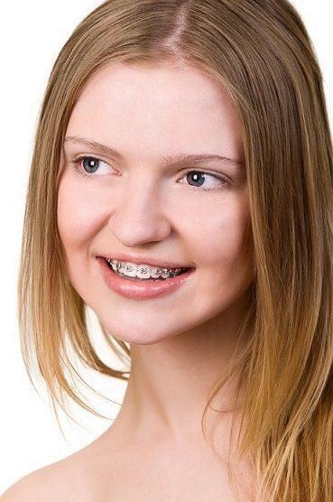 enderezar los dientes en majadahonda, ortodoncia en majadahonda, ortodoncista en majadahonda, corregir la posición de los dientes majadahonda, estética dental en majadahonda, clínica dental majadahonda, odontología majadahonda,odontólogo majadahonda, dentista majadahonda