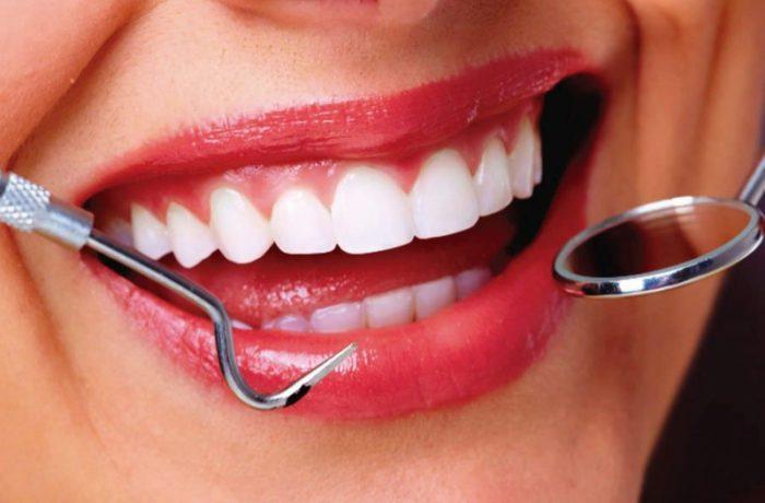 estética dental majadahonda, mejora tu sonrisa, ortodoncia en majadahonda, carilla dental en majadahonda, dientes perfectos, estética dental, odontología estética, odontología cosmética