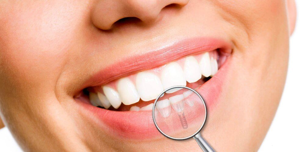 implantes dentales majadahonda