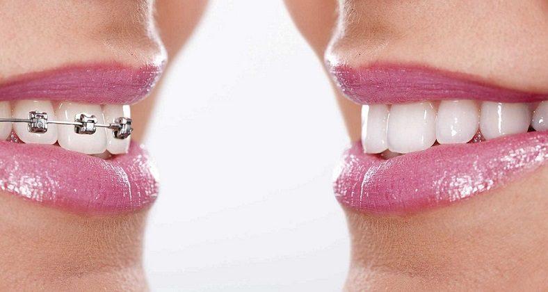 invisalign es mejor que brackets, brackets boadilla, invisalign boadilla, ortodoncista boadilla, ortodoncia boadilla, ortodoncia transparente boadilla, ortodoncia invisible boadilla, estética dental boadilla, sonrisa boadilla, enderezar los dientes boadilla, corregir la posición de los dientes boadilla, alineadores invisibles boadilla, alineadores transparentes boadilla, clínica dental boadilla, dentista boadilla, odontólogo boadilla, odontología boadilla