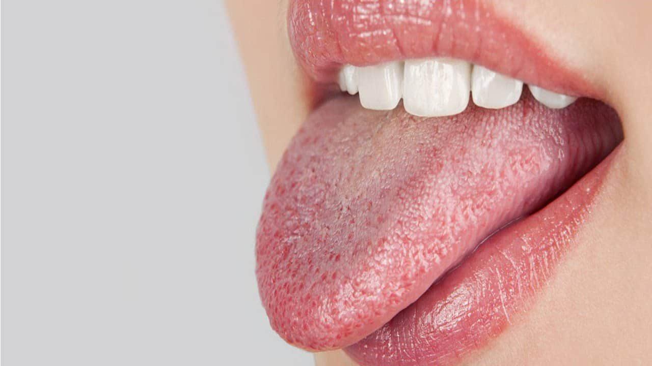 la boca seca