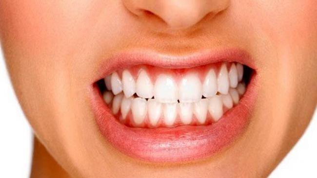 las causas del bruxismo, bruxismo en boadilla, apretar los dientes en boadilla, rechinar los dientes en boadilla, dentista boadilla, odontólogo boadilla, odontología boadilla, clínica dental boadilla, revisión dental boadilla
