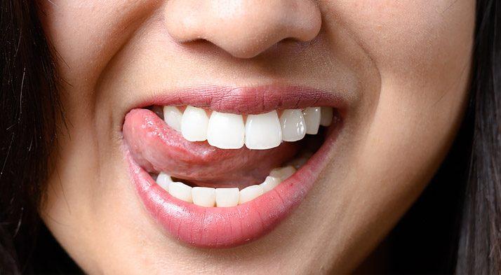 limpieza dental profesional en majadahonda, limpieza dental profunda, limpiar los dientes, dientes saludables, revisión dental, dentista en majadahonda, clínica dental en majadahonda