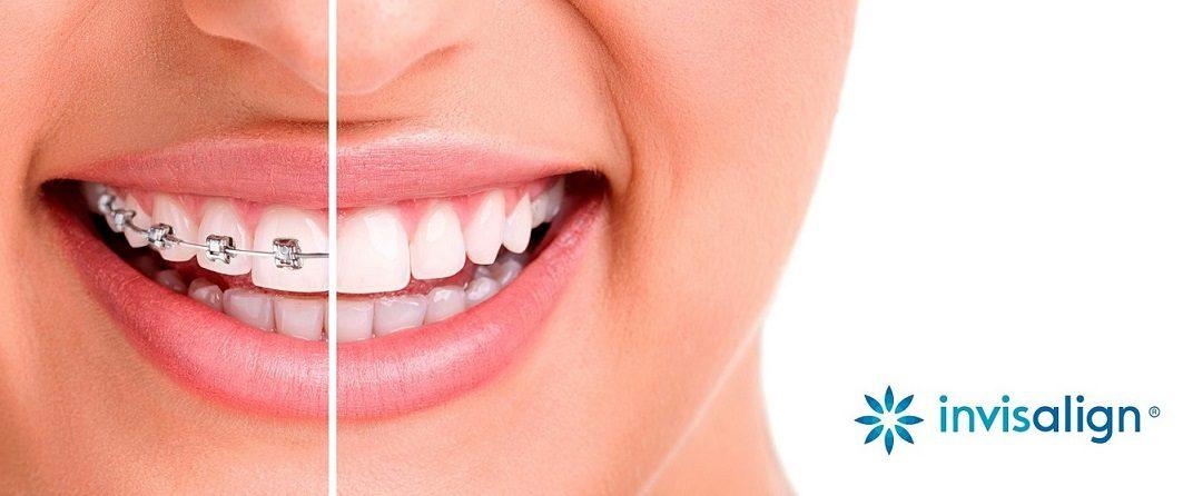 los beneficios de invisalign, invisalign boadilla, ortodoncia boadilla, ortodoncia transparente boadilla, alineadores invisibles boadilla, alineadores transparentes boadilla, sonrisa boadilla, enderezar los dientes boadilla, sonrisa boadilla, clínica dental boadilla, dentista boadilla