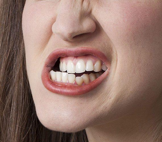 los peligros del bruxismo, bruxismo majadahonda, apretar los dientes majadahonda, rechinar los dientes majadahonda, odontólogo majadahonda, odontología majadahonda, dentista majadahonda, clínica dental majadahonda, diente roto majadahonda, diente fracturado majadahonda, dolor de dientes majadahonda, sensibilidad dental majadahonda, revisión dental majadahonda