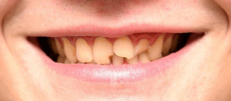 por qué se rompen los dientes, dientes rotos en boadilla, dentista en boadilla, odontología en boadilla, odontólogo en boadilla, clínica dental en boadilla, revisión dental en boadilla, higiene oral en boadilla, estética dental en boadilla, salud dental en boadilla
