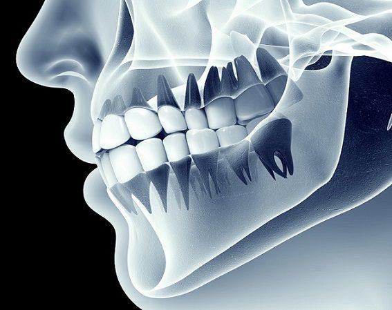 El dentista en boadilla del monte explica la importancia de las radiografías dentales. Acuda a la Clínica Dental Infante Don Luis (Dentalarroque) para asegurar que los dientes y las encías están sanos.