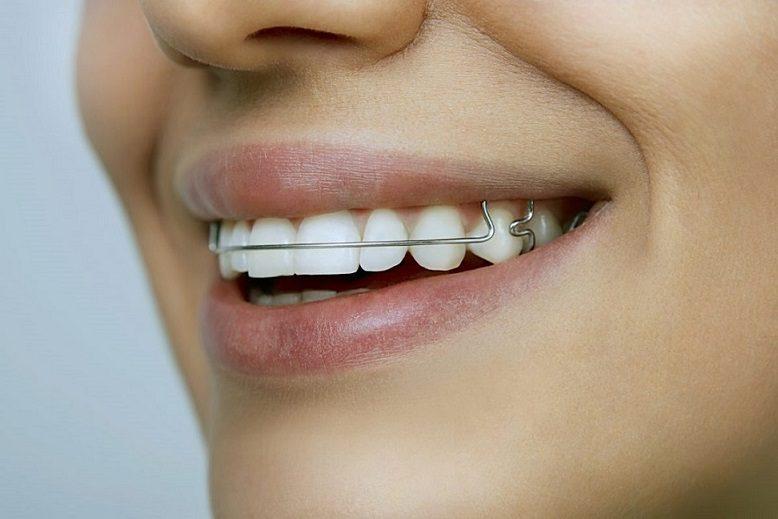 retenedores dentales, retenedor dental en boadilla, retenedores dentales en boadilla, ortodoncia en boadilla, ortodoncista en boadilla, clínica dental en boadilla, enderezar los dientes en boadilla, sonrisa en boadilla, dientes saludables en boadilla, salud dental en boadilla