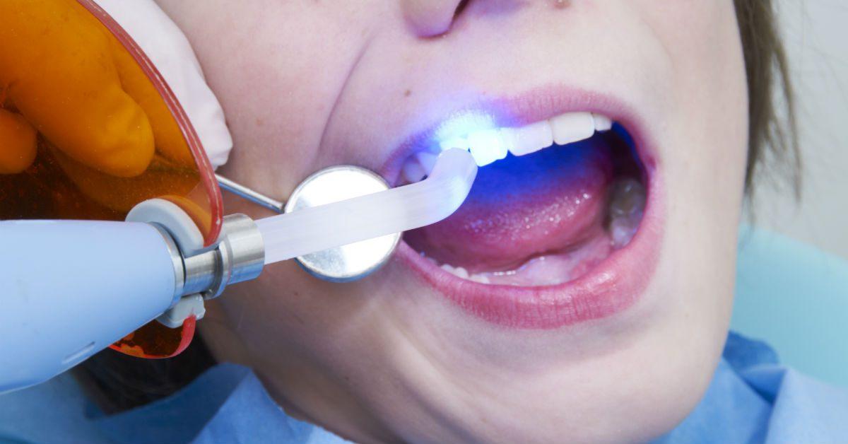 selladores dentales, sellador dental en boadilla, caries dental, odontopediatria, dentista para niños, odontólogo infantil