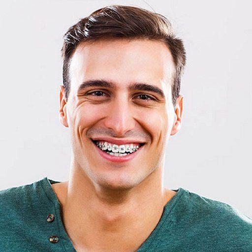 ¿Son recomendables los brackets? Acuda a la Clínica Dental Infante Don Luis (Dentalarroque boadilla) para enderezar los dientes. La alineación dental tiene un impacto importante en la salud bucal. El ortodoncista en boadilla del monte ayuda a corregir la posición de los dientes y a mejorar la estética dental.